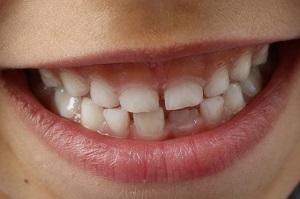 Motverka Tandpressning